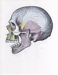 Side view of the skull with superior dislocation of jaw.