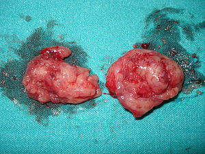 English: Two tonsils removed from an adult.