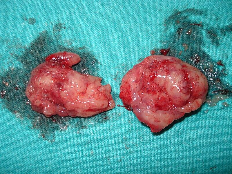 What Do Swollen Tonsils Look Like | Car Interior Design