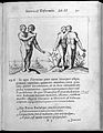 Two human figures with abnormalities Wellcome L0033295.jpg