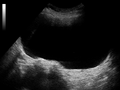 Ultrasound Scan ND 151101 1513540 cr.png