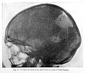 Verbal aphasia, injury to skull. Wellcome L0023677.jpg