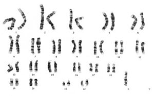 Nondisjunction -  Karyotype of X monosomy (Turner syndrome)  This condition is characterized by the presence of only one X chromosome and no Y chromosome (see bottom right corner).