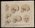A profile of an old mentally handicapped man, skulls of vari Wellcome V0009459.jpg