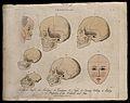A profile of an old mentally handicapped man, skulls of vari Wellcome V0009459.jpg