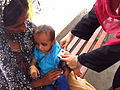 A young girl is checked for signs of malnutrition, Sindh, Pakistan, April 2012 (8405077949).jpg