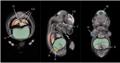 Atlas de Embrião de Camundongo E14.5.png