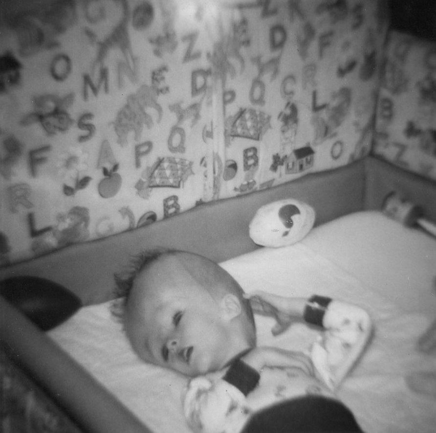 Baby with hydrocephalus (9587849190)