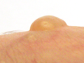Blister from burns (side).png