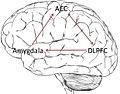 Brain Racism Complex.jpg