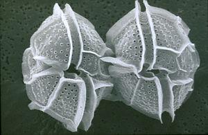 CSIRO ScienceImage 7609 SEM dinoflagellate