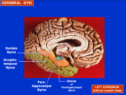 Cerebral Gyri - Medial Surface2.png