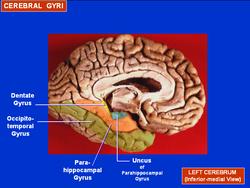 Parahippocampal gyrus - Wikipedia