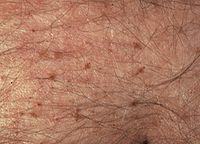 Milyen következmények lehetnek a prostatitis alatt