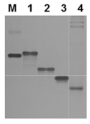 Affinity electrophoresis - an example of an agarose gel after electrophoresis