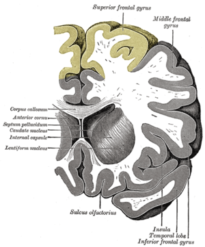 Superior frontal gyrus - Coronal section through anterior cornua of lateral ventricles. Superior frontal gyrus is shown as yellow.