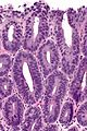 High-grade columnar dysplasia of the esophagus -- high mag.jpg