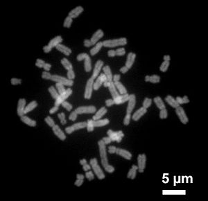 Chromosome - Human chromosomes during metaphase