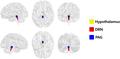 Hypothalamus DRN PAG.png