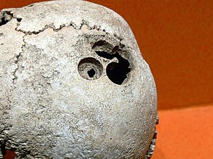 Trepanation in Mesoamerica - Human skull with evidence of trepanation found at Monte Albán in Oaxaca, Mexico.