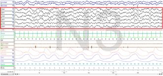 Non-rapid eye movement sleep - Stage 3 Sleep. EEG highlighted by red box.