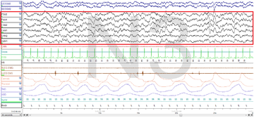 Stage 3 Sleep. EEG highlighted by red box.