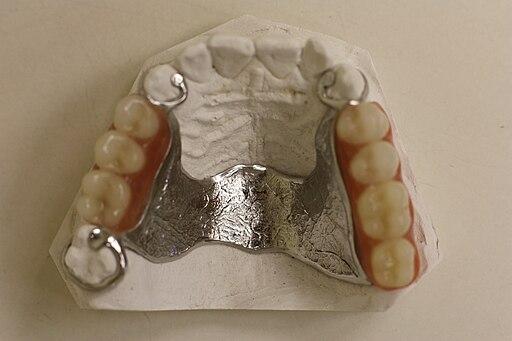 Tragen interimsprothese nachts Zahnersatzprothesen: Gewöhnung