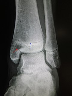 Salter–Harris fracture fracture that involves the epiphyseal plate or growth plate of a bone