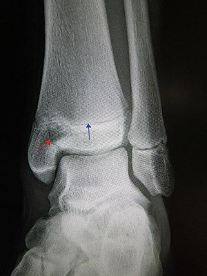 Salter–Harris fracture - Wikipedia