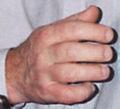 Sausagefingers2004b.jpg