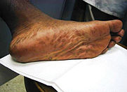 Secondary stage syphilis sores (lesions) on the soles of the feet called plantar lesions.~CDC