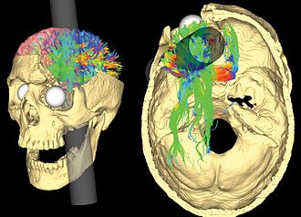 Phineas Gage - V