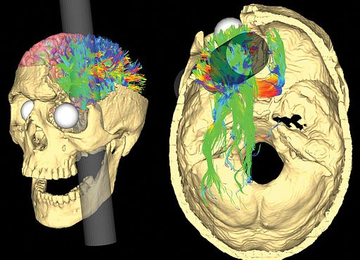 Simulated Connectivity Damage of Phineas Gage 4 vanHorn PathwaysDamaged