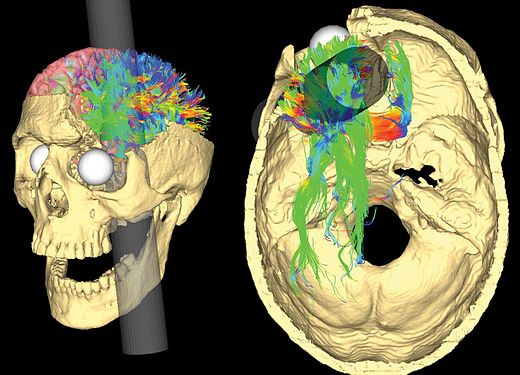 False-color representations of cerebral fiber pathways affected, per Van Horn et al. Simulated Connectivity Damage of Phineas Gage 4 vanHorn PathwaysDamaged.jpg