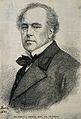Sir Dominic John Corrigan. Wood engraving. Wellcome V0001299.jpg
