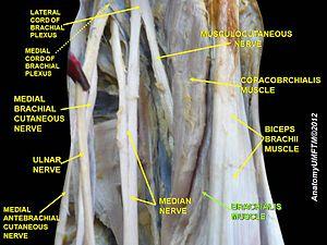 Brachialis muscle - Image: Slide 10zzz