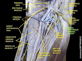 Medial circumflex femoral artery - Image: Slide 9LLLL