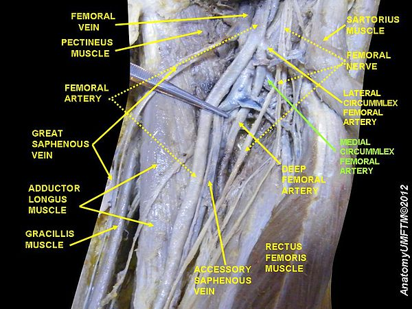 heart and right femoral artery essay The femoral vein runs parallel with the femoral artery through the upper thigh and pelvic region of the body (yahoo health, 2013) being one of the larger veins in the body, the femoral vein returns blood into the leg to the heart through the iliac vein.