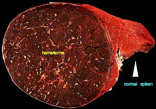 Hamartoma A non cancerous growth made up of an abnormal mixture of cells and tissues normally found in the area of the body.