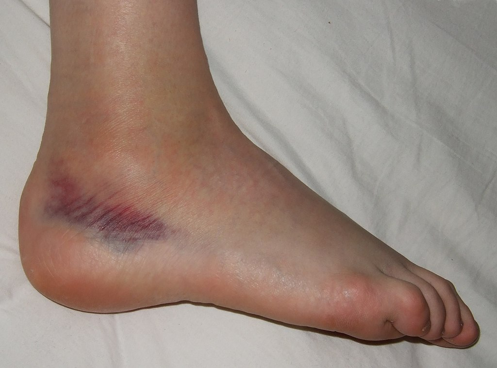 Long-Term Complications From Ankle Sprains