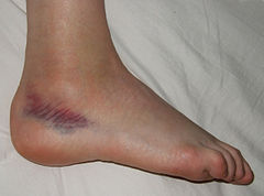 Sprained foot.jpg