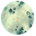 Streptococcus pyogenes 01 thumbnail.png