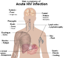 A diagram of a human torso labelled with the most common symptoms of an acute HIV infection