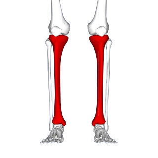 Shin splints injury or pain in the lower tibia