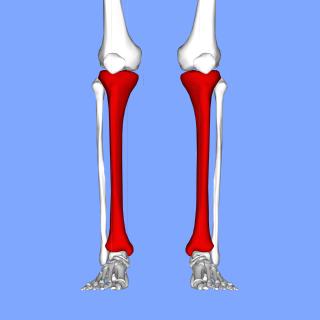Shin splints Medical condition