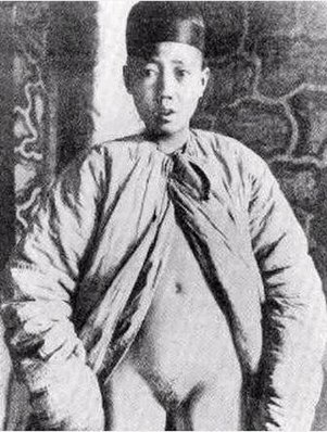 An emasculated Chinese eunuch from the Qing Dynasty A eunuch of Qing Dynasty.JPG