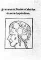 Brain, 1518 Wellcome L0000835.jpg