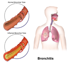a study on the inflammation of the bronchi bronchitis Acute bronchitis is inflammation of the bronchial tubes (the airways that allow air to pass from the mouth to the lungs) that usually is caused by viruses or bacteria although other irritants for example, smoke or pollution, also may cause the disease, they are far less frequent causes acute.