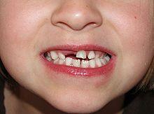 welche zähne fallen bei kindern zuerst raus