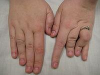 Larsen syndrome